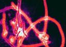 640px-Ebola_virus_particles